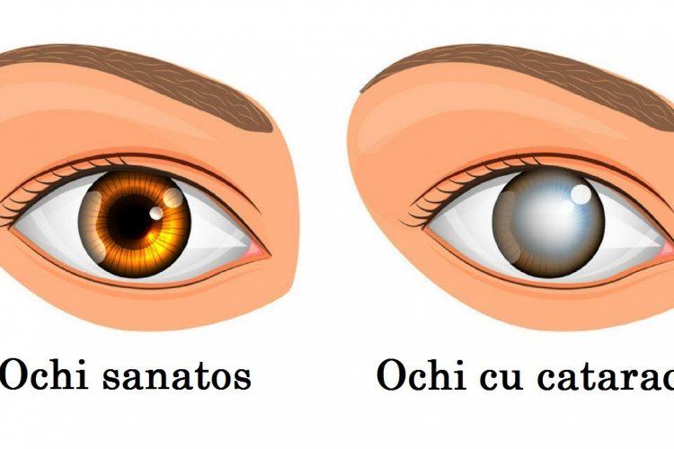 Cauze de cataracta, simptome, teste de vedere si interventii chirurgicale